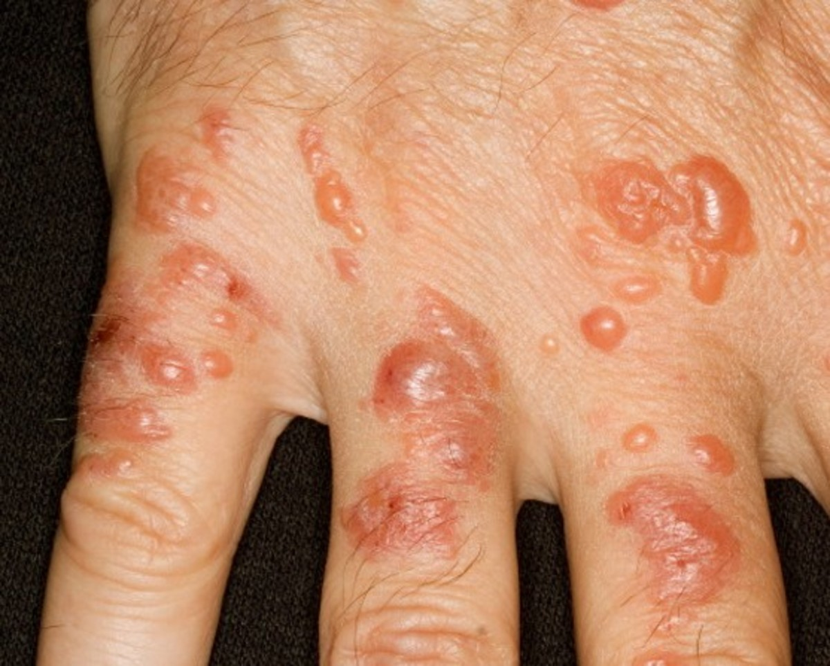 Contact Dermatitis - Pictures, Symptoms, Causes, Treatment