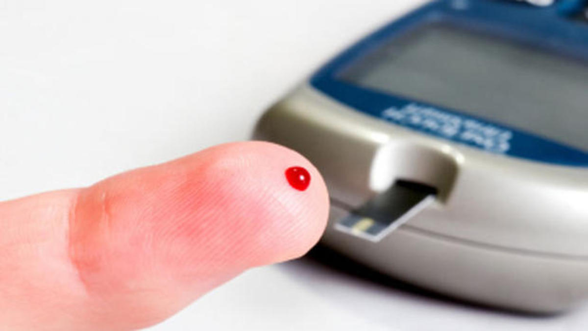 Test often, medicate if prescribed, eat as necessary.  Food should be your first line of treating low blood sugar. High blood sugars often require medication to control, but diet can play a key part in managing high blood sugar.
