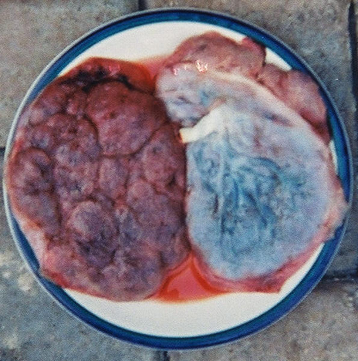 strange-food-from-around-the-world