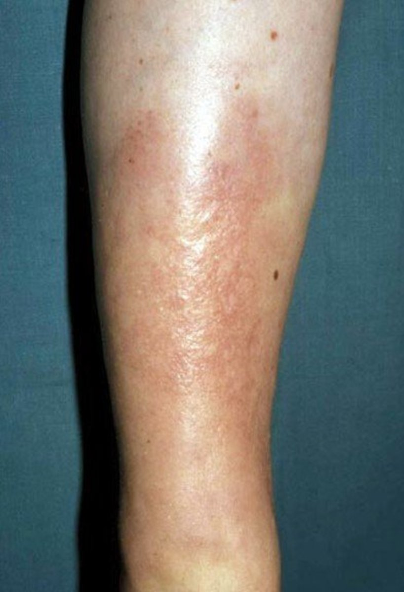Pretibial Myxedema - Pictures, Treatment, Symptoms, Causes