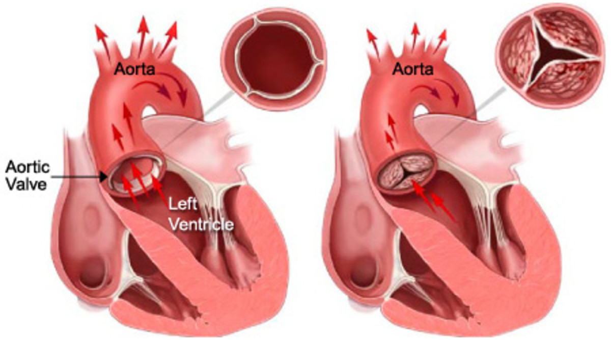 Stenosis may occur below, at or above the aortic valve. These are termed as subaortic. Valvular and supravalvular stenosis respectively.