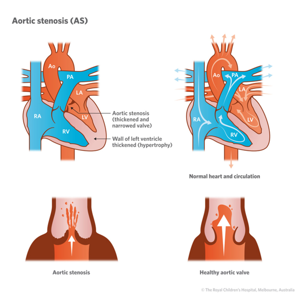 The aperture of the normal aortic valve is 2.5cm2 . Narrowing of the aperture to 0.75cm2 or less produces severe obstruction to left ventricular ejection and a pressure gradient across the aortic valve develops which may reach 50 mm to even 200 mmHg.