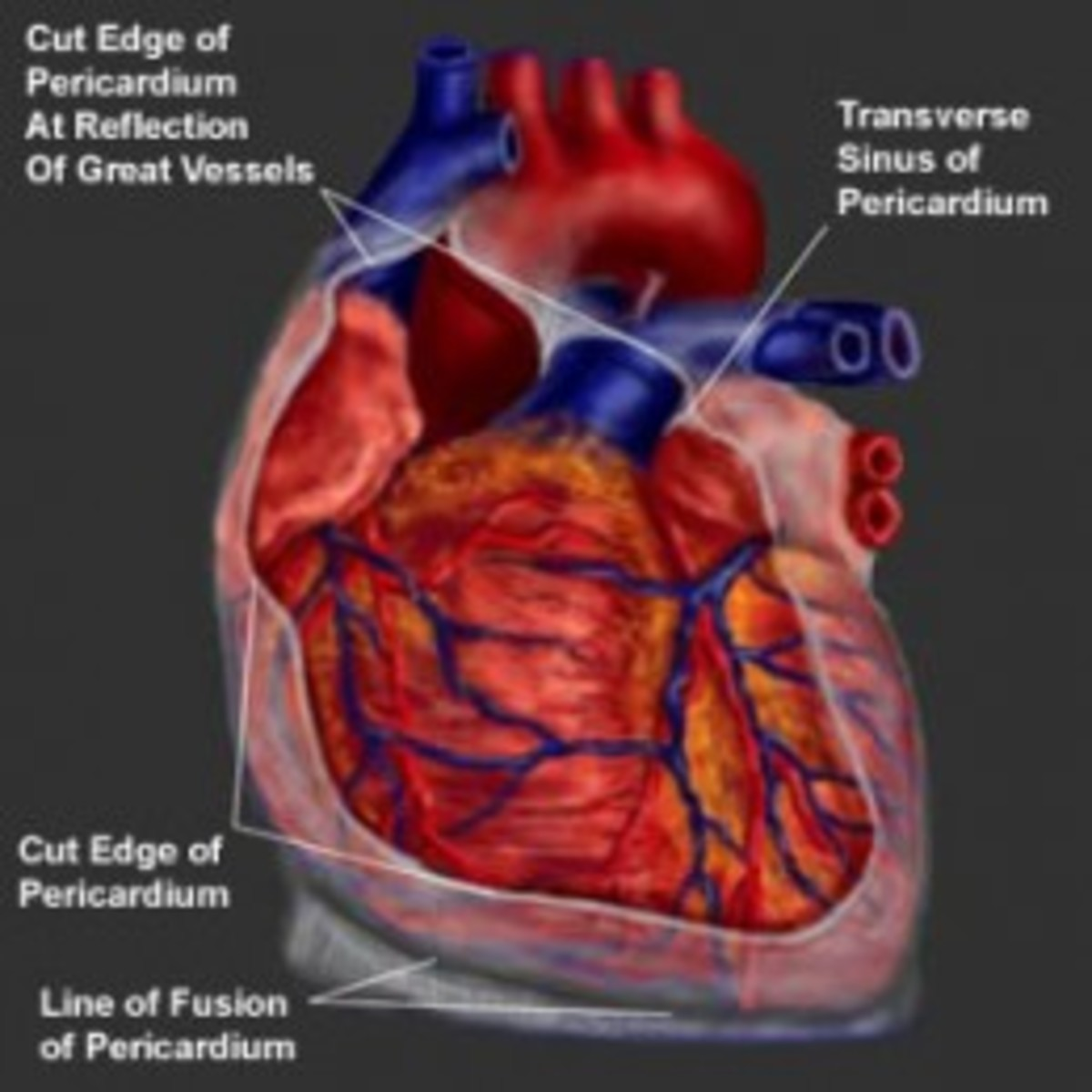 """In acute pericarditis, the pericardium becomes thick and opaque and a fibrinous exudates accumulates between the two layers, giving rise to a """"bread and butter"""" appearance. Effusion develops later."""
