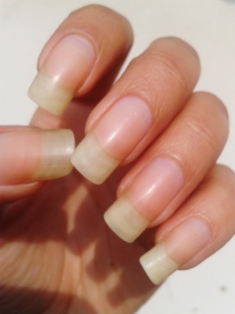 Yellow nails because of excessive usage of nail polish.