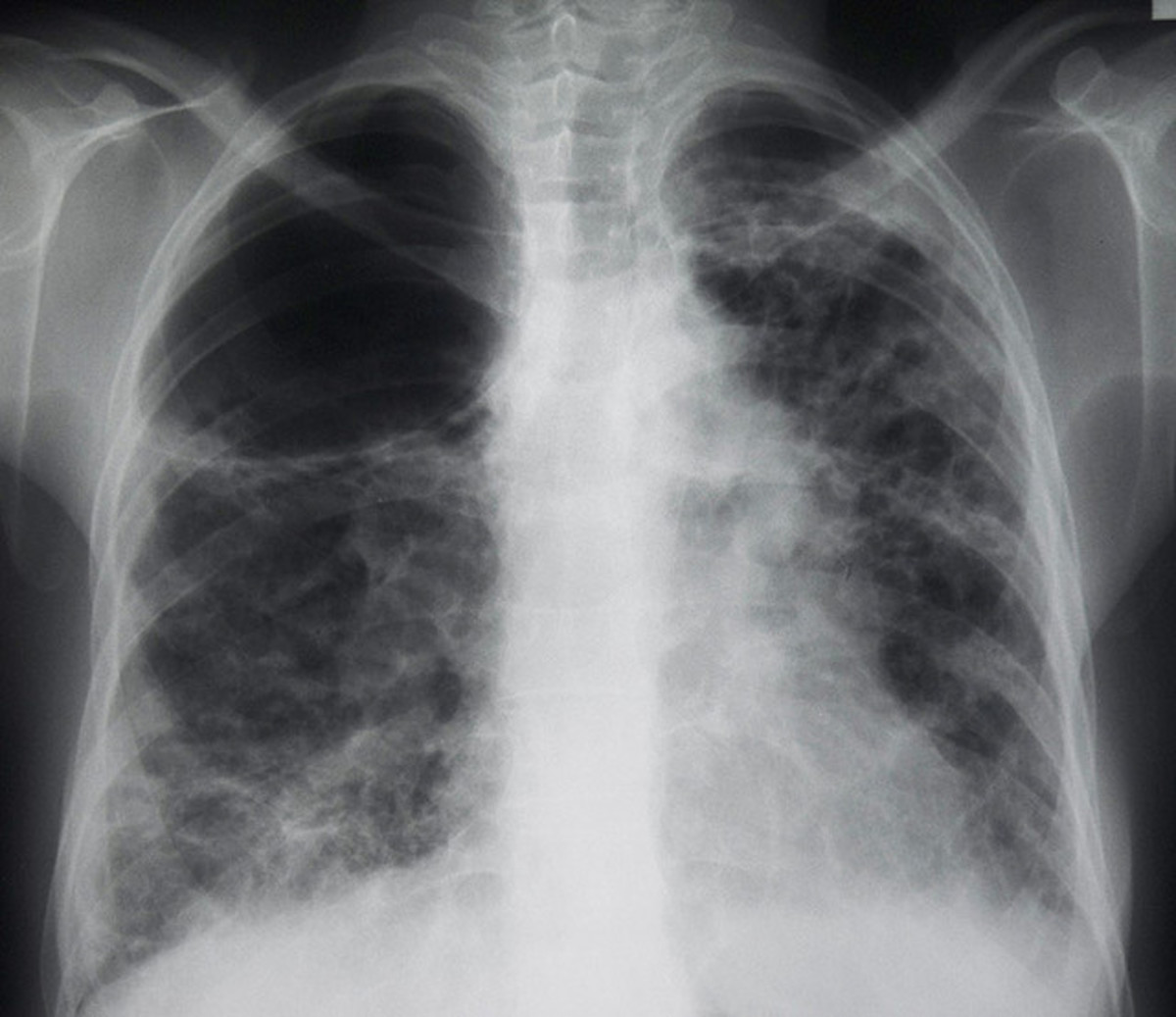 Many of the symptoms of lung cancer (poor appetite, weight loss, fever, fatigue) are not specific. In many people, the cancer has already spread beyond the original site by the time they have symptoms and seek medical attention.