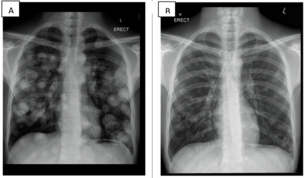 This may reveal an obvious mass, widening of the mediastinum (suggestive of spread to lymph nodes there), atelectasis (collapse), consolidation (pneumonia), or pleural effusion.