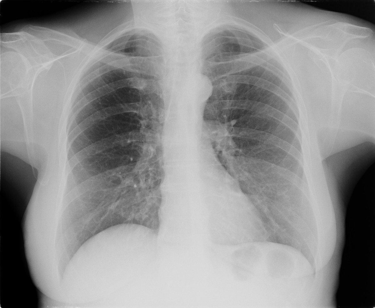 Lung cancer often appears as a solitary pulmonary nodule on a chest radiograph.