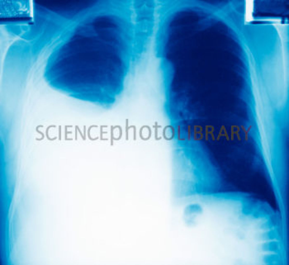 The goals are to rule out other sources of the symptoms and to find the cause of the pleurisy so that the underlying disorder can be treated.