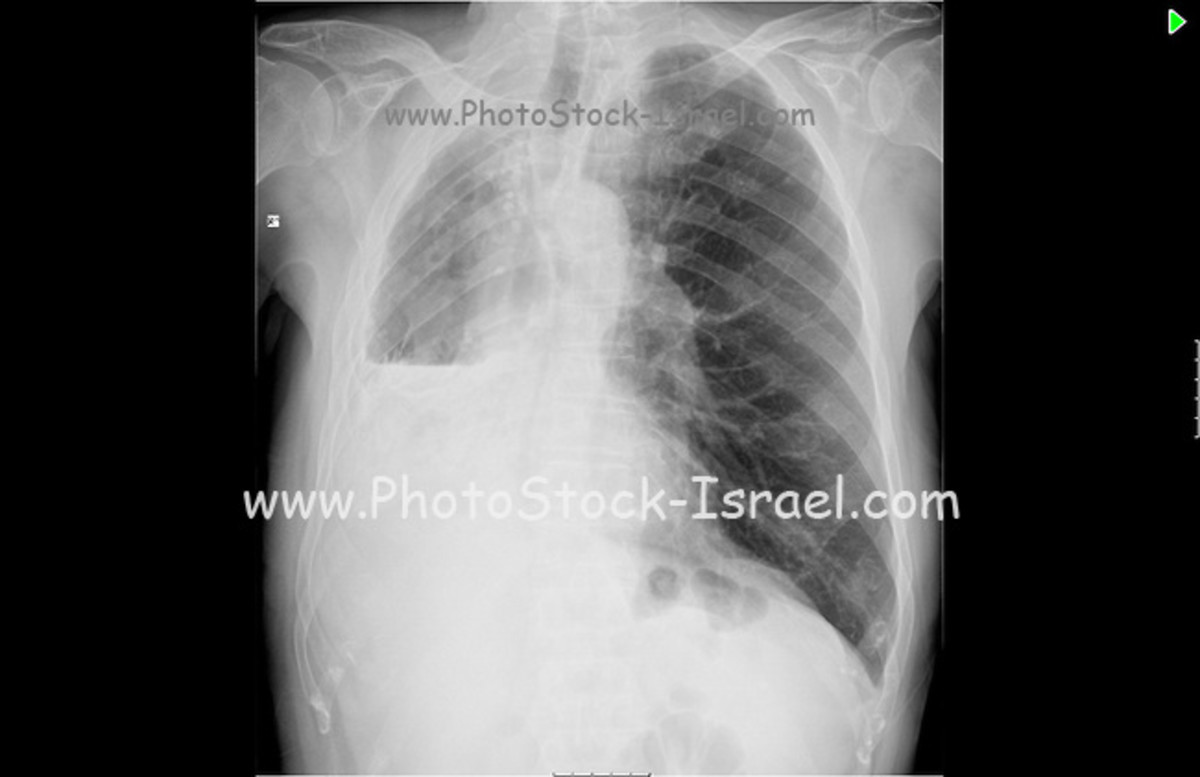 Some cases of pleuritic chest pain are idiopathic, which means that the exact cause cannot be determined.