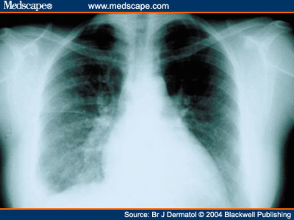 However, many other different conditions can cause pleuritic chest pain