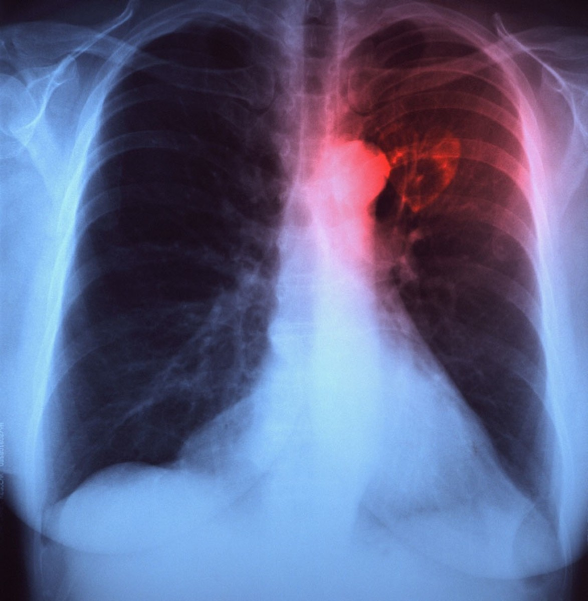 When the space between two layers of pleura starts to fill with fluid in a case of pleural effusion, it can ease the chest pain, but instead creates a shortness of breath, since the lungs need room to expand during breathing.