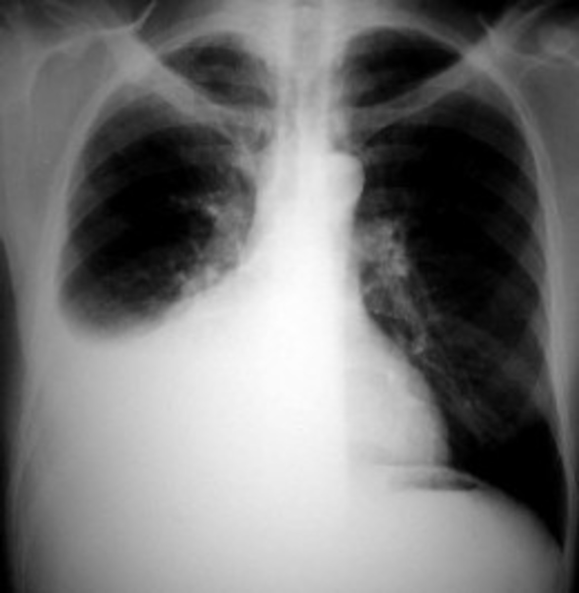 The defining symptom of pleurisy is a sudden sharp, stabbing, burning or dull pain in the right or left side of the chest during breathing, especially when one inhales and exhales