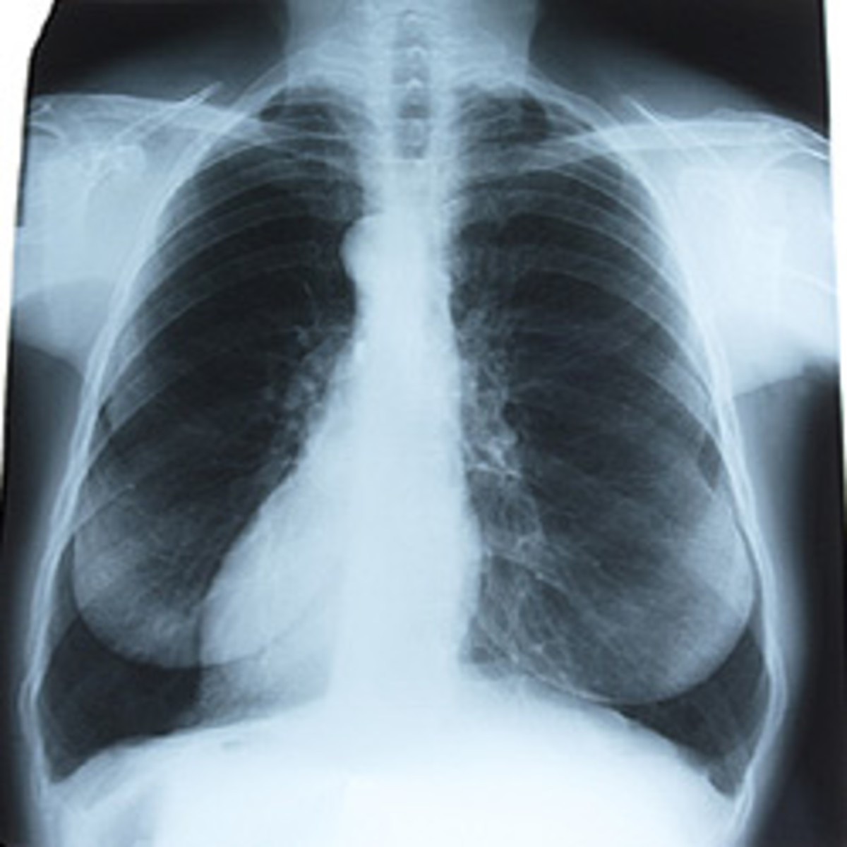 Pleurisy In Chest X Ray Various Radiographs To Show And
