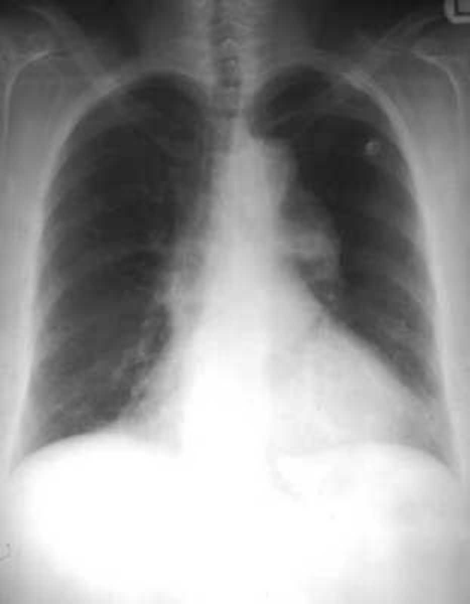 Pleural space can be invaded by fluid, air, and particles from different parts of the body which fairly complicates the diagnosis. Viral infection (coxsackievirus, RSV, CMV, adenovirus, EBV, parainfluenza, influenza) is the most common cause o