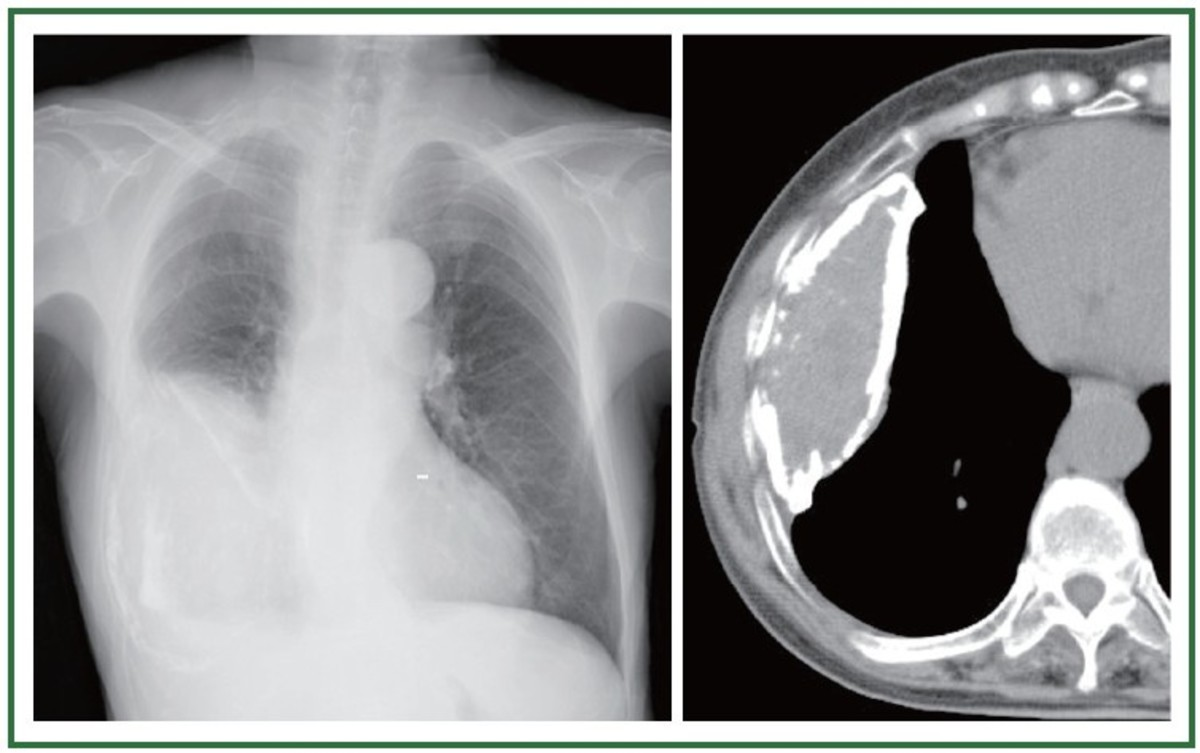 The inflamed pleural layers rub against each other every time the lungs expand to breathe in air. This can cause sharp pain when breathing, also called pleuritic chest pain.