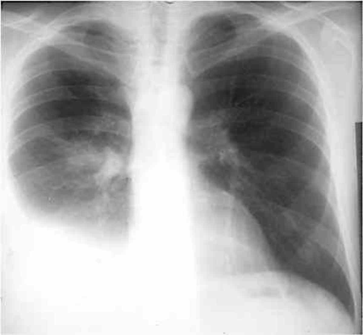 Sometimes air comes in through the needle or the needle makes a hole in the lung. Usually, a hole will seal itself. But sometimes air can build up around the lung and make it collapse.