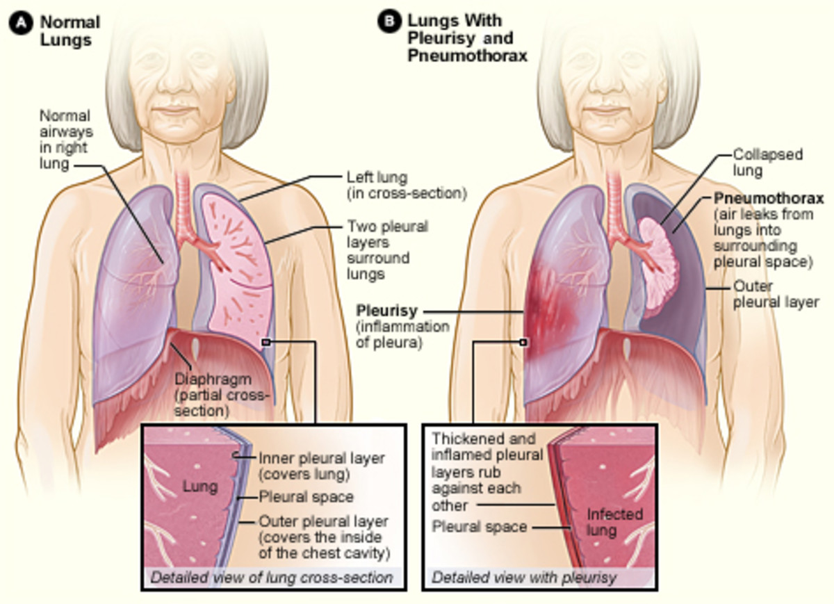 Once the presence of an excess fluid in the pleural cavity, or pleural effusion, is suspected and location of fluid is confirmed, a sample of fluid can be removed for testing