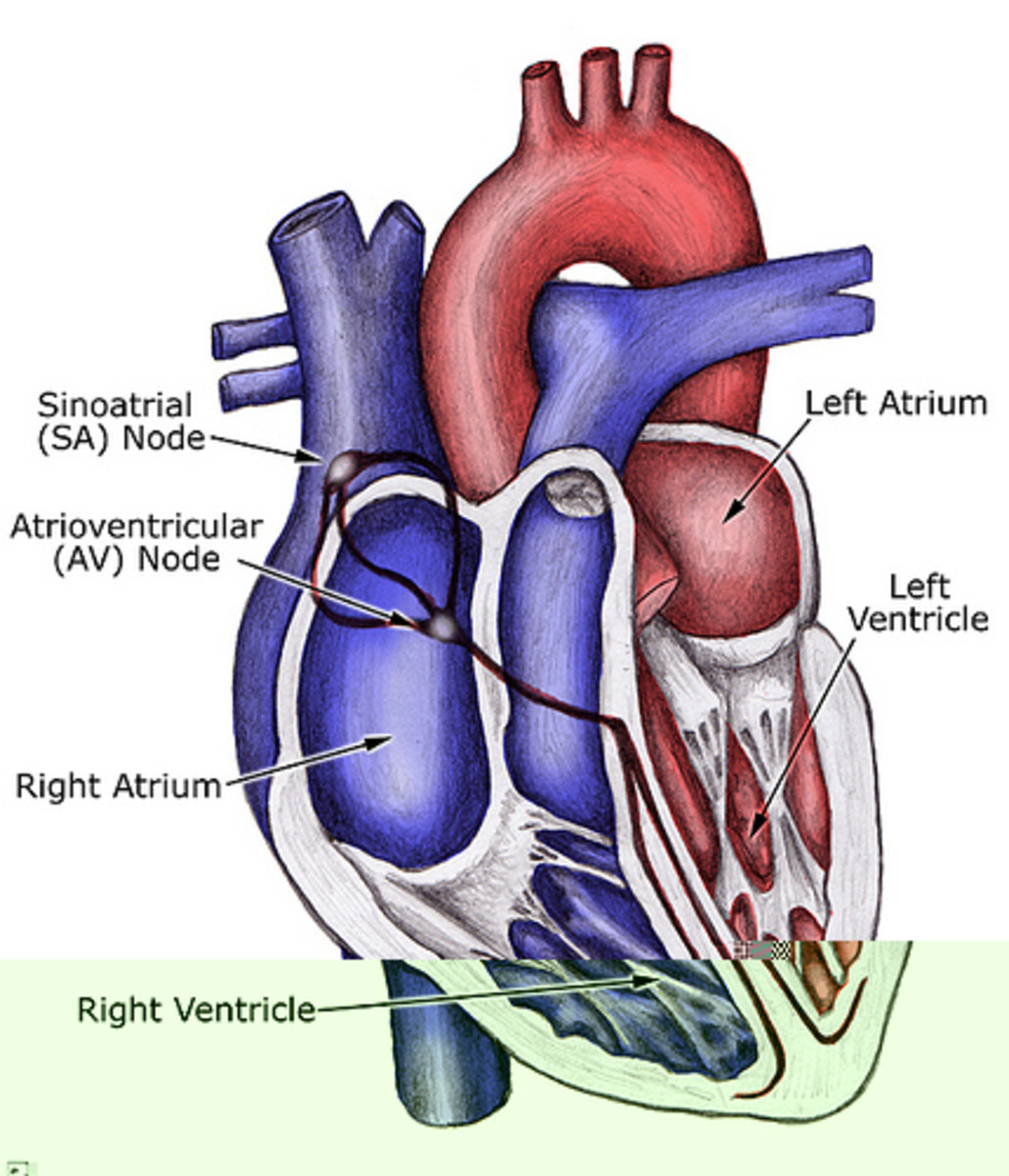 Heart Condition – Long QT Syndrome