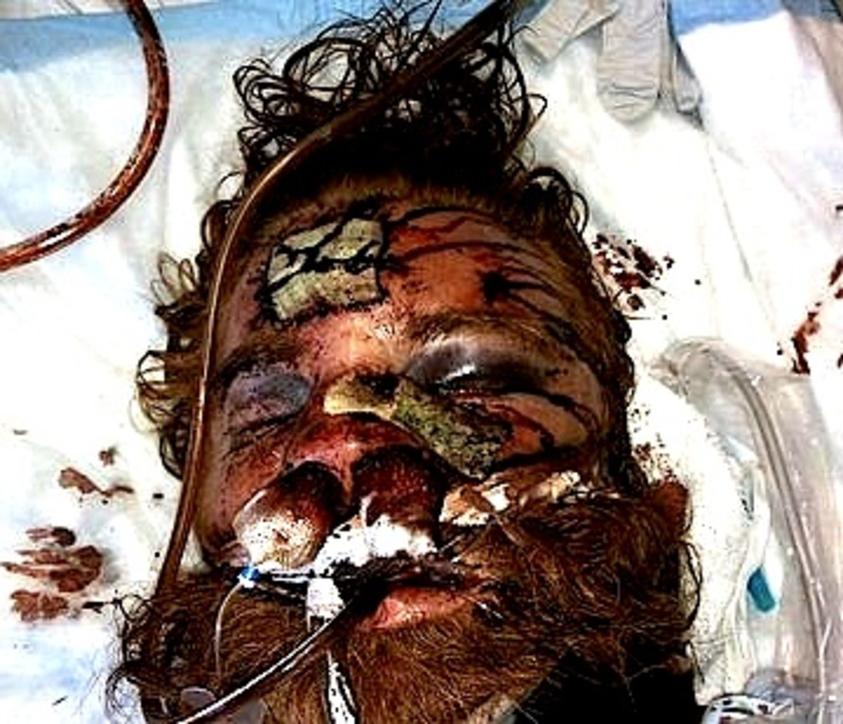 This is how Mr. Thomas looked after his beating as he lay dying in the hospital.