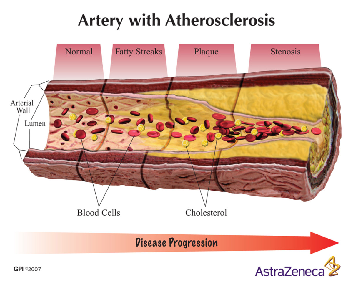 Blocked Artery Symptoms & Silent Heart Attacks