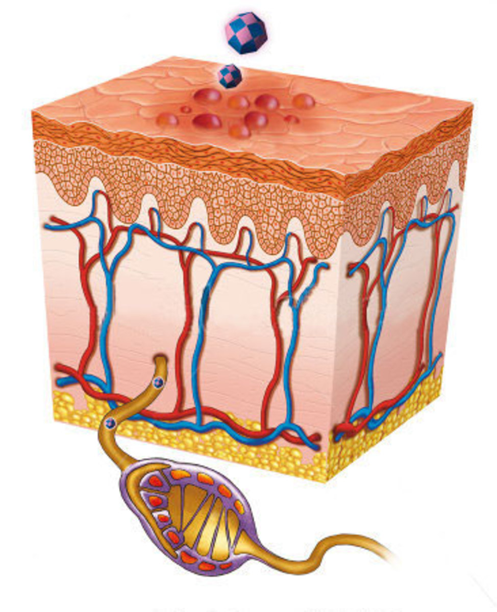 An artist's impression of the herpes virus causing blisters on the skin.