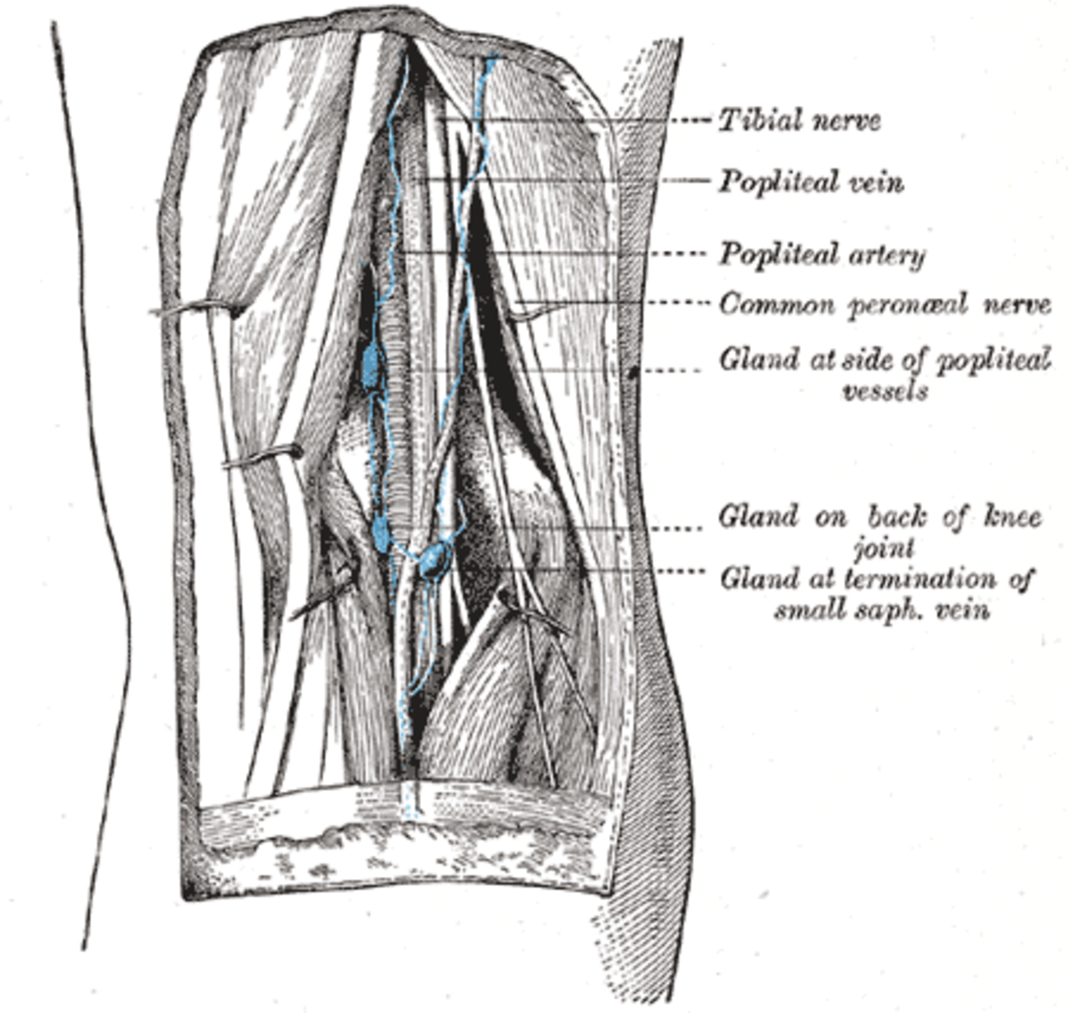 A cutaway showing the affected nerve
