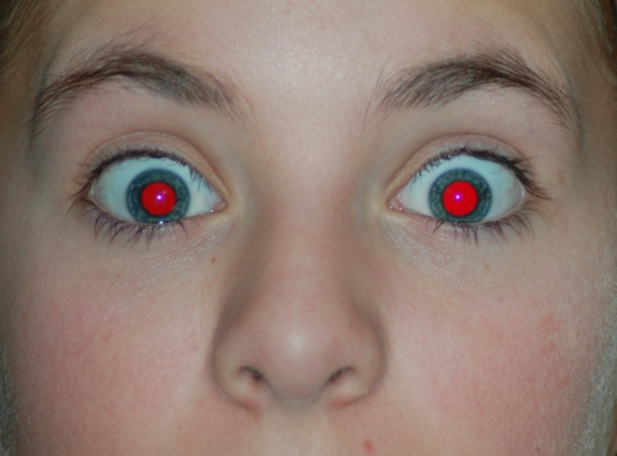 Red eye effect on a photograph