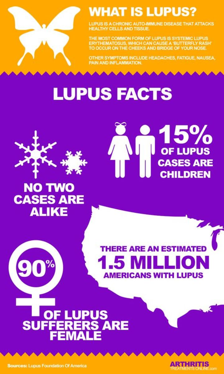 why-i-didnt-grin-and-bear-it-when-i-started-to-lose-my-teeth-due-to-lupus