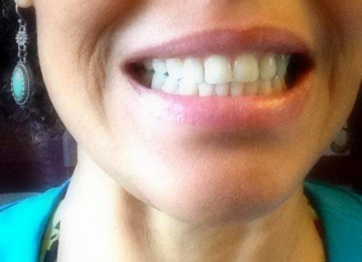 Although, lupus did damage my teeth a great deal, I managed to stop it in its tracks with my herbal remedies, as well as frequent visits to the dentist.  I have not had an oral ulcer in several years, and bleeding gums have been reduced drastically.