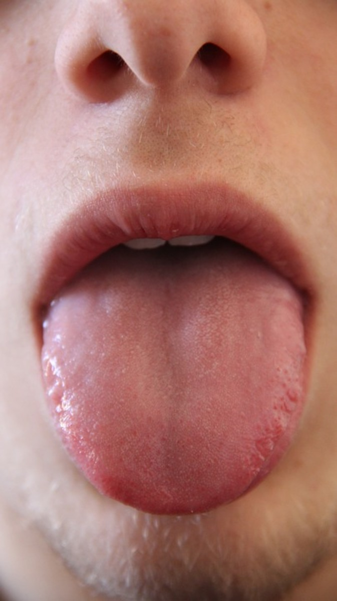 clear bubble under my tongue
