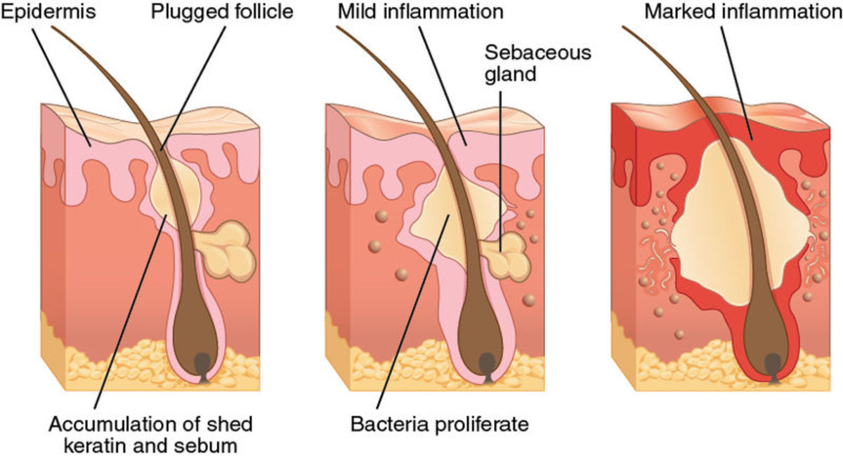 This diagram shows how pimples can form when a pore is blocked by excess secretion from the sebaceous gland or by a hair follicle. Blackheads form in a similar way, but the ick is exposed to oxygen and turns a dark colour.
