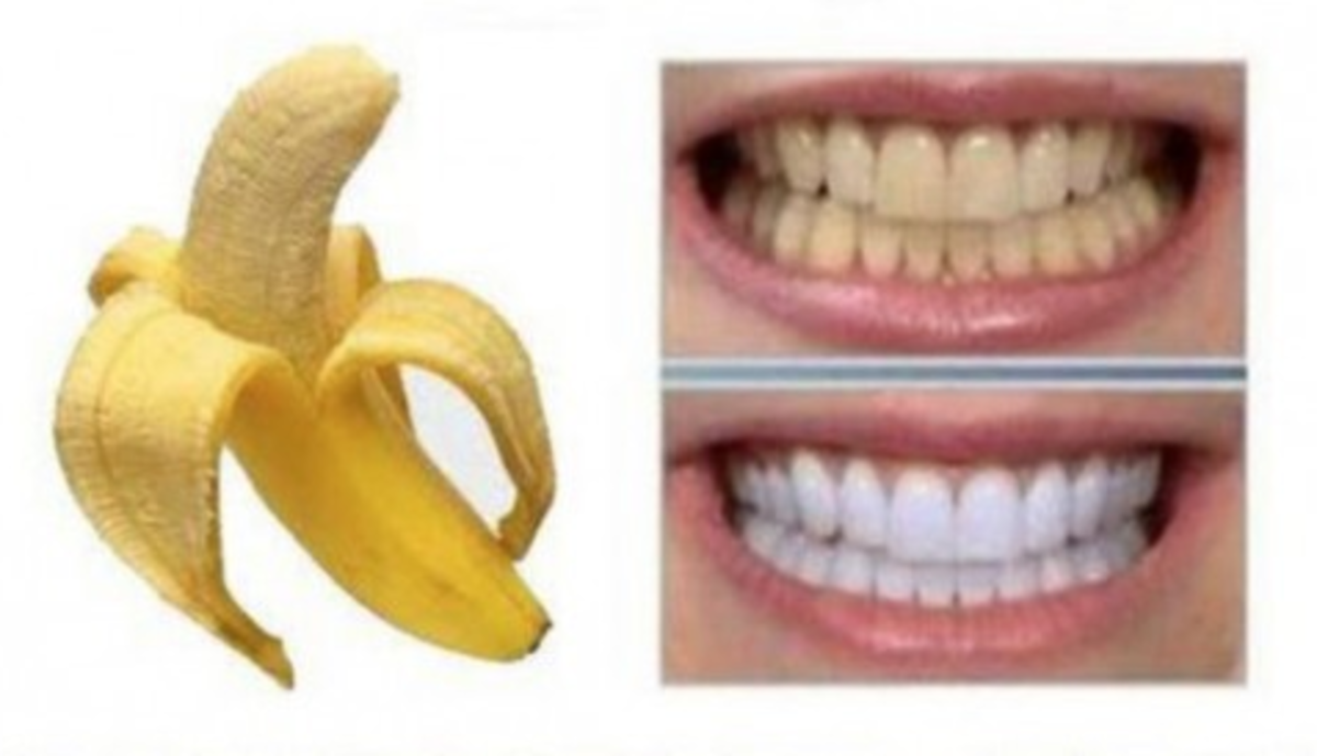 See the difference when banana peels have been used to whiten teeth.
