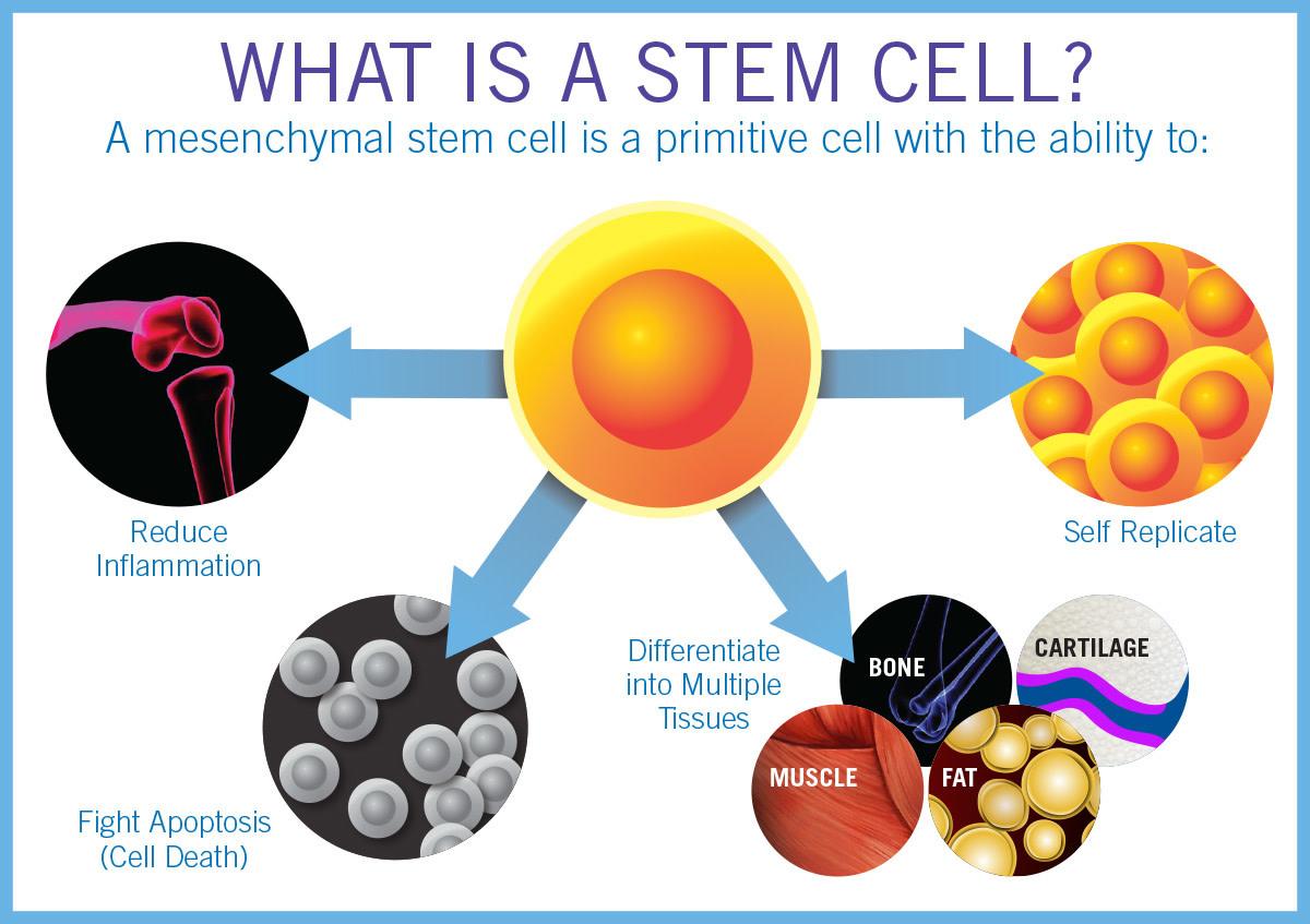 Stem Cell Therapy Versus Photobiomodulation