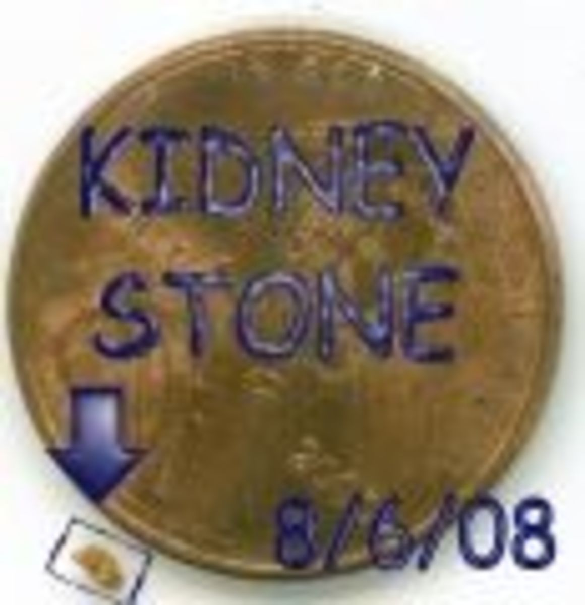 OH NO! A KIDNEY STONE!