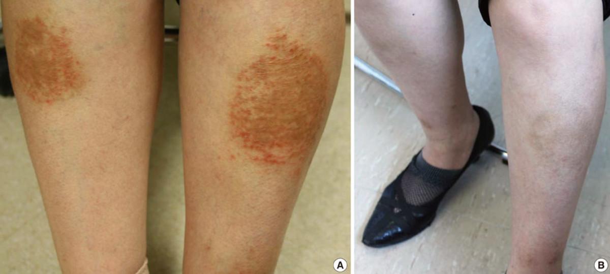 Nummular dermatitis (discoid eczema)