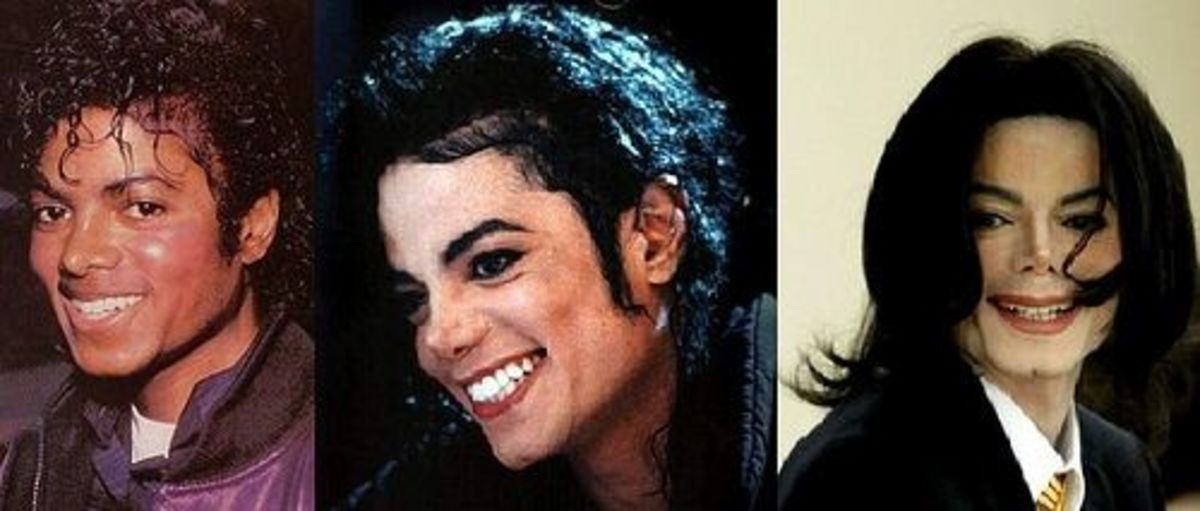How much plastic surgery did Michael Jackson Nose Collapse