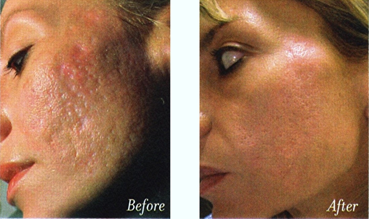 tca chemical peel. Before amp; After Using TCA To