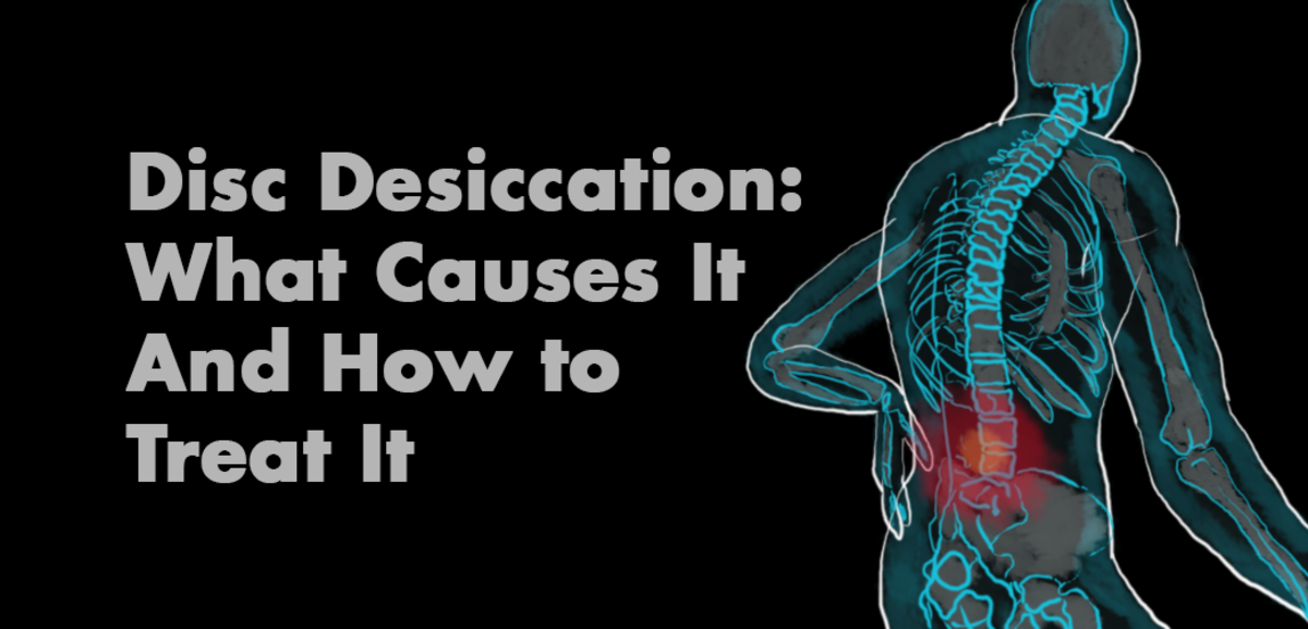 The Cause & Treatment of Desiccated Discs