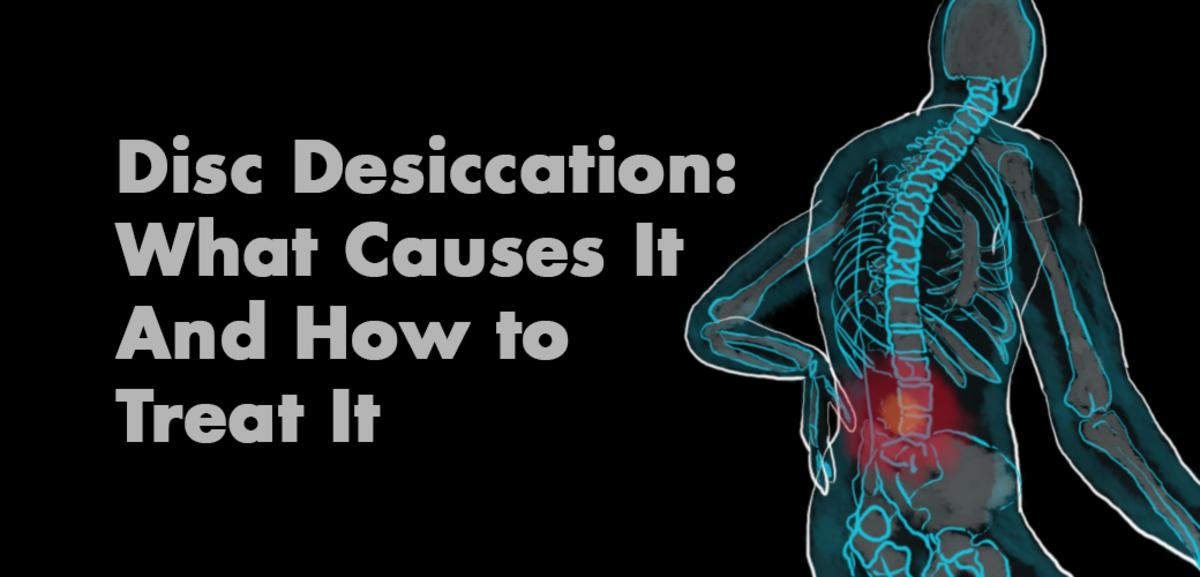 disc-desiccation