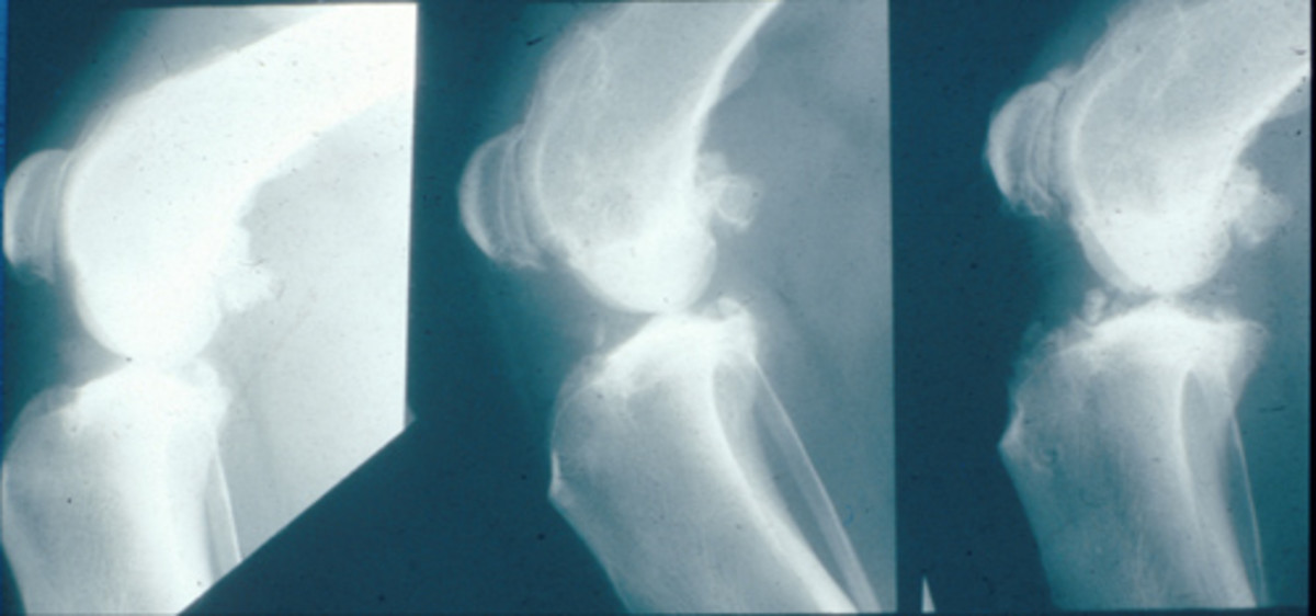 knee-x-ray-understanding-the-signs-of-arthritis