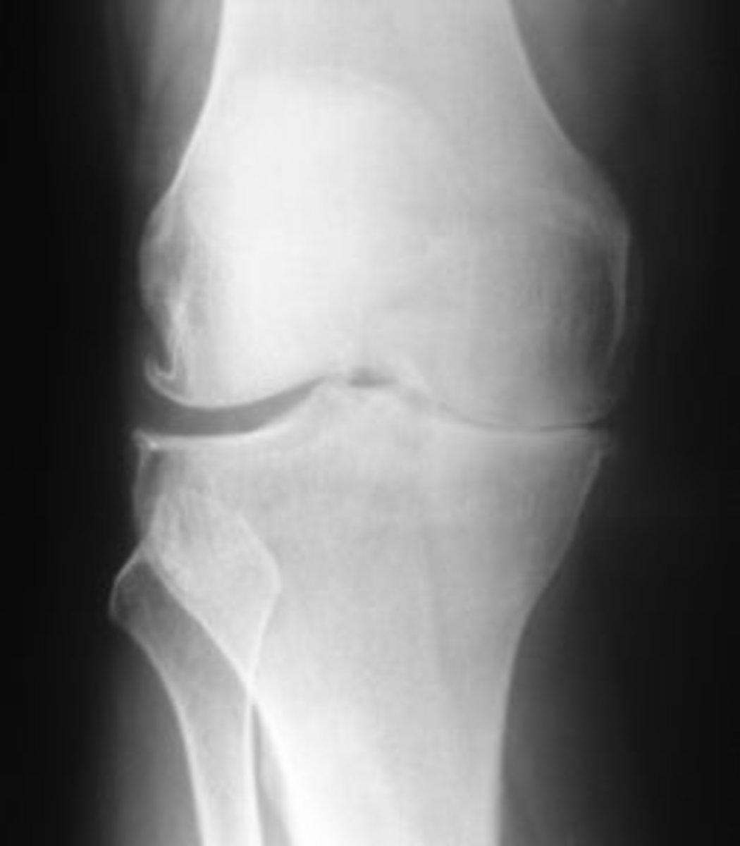 Knee X-ray - Understanding the signs of Arthritis