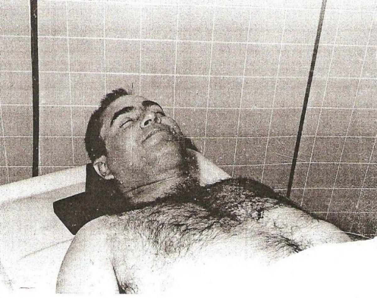 Here is the autopsy photo of the Gaffney Strangler Lee Roy Martin after he was killed by a fellow inmate.