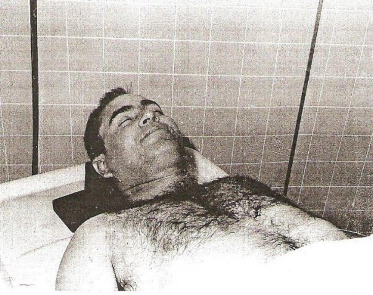 Famous Celebrity Deaths Autopsy