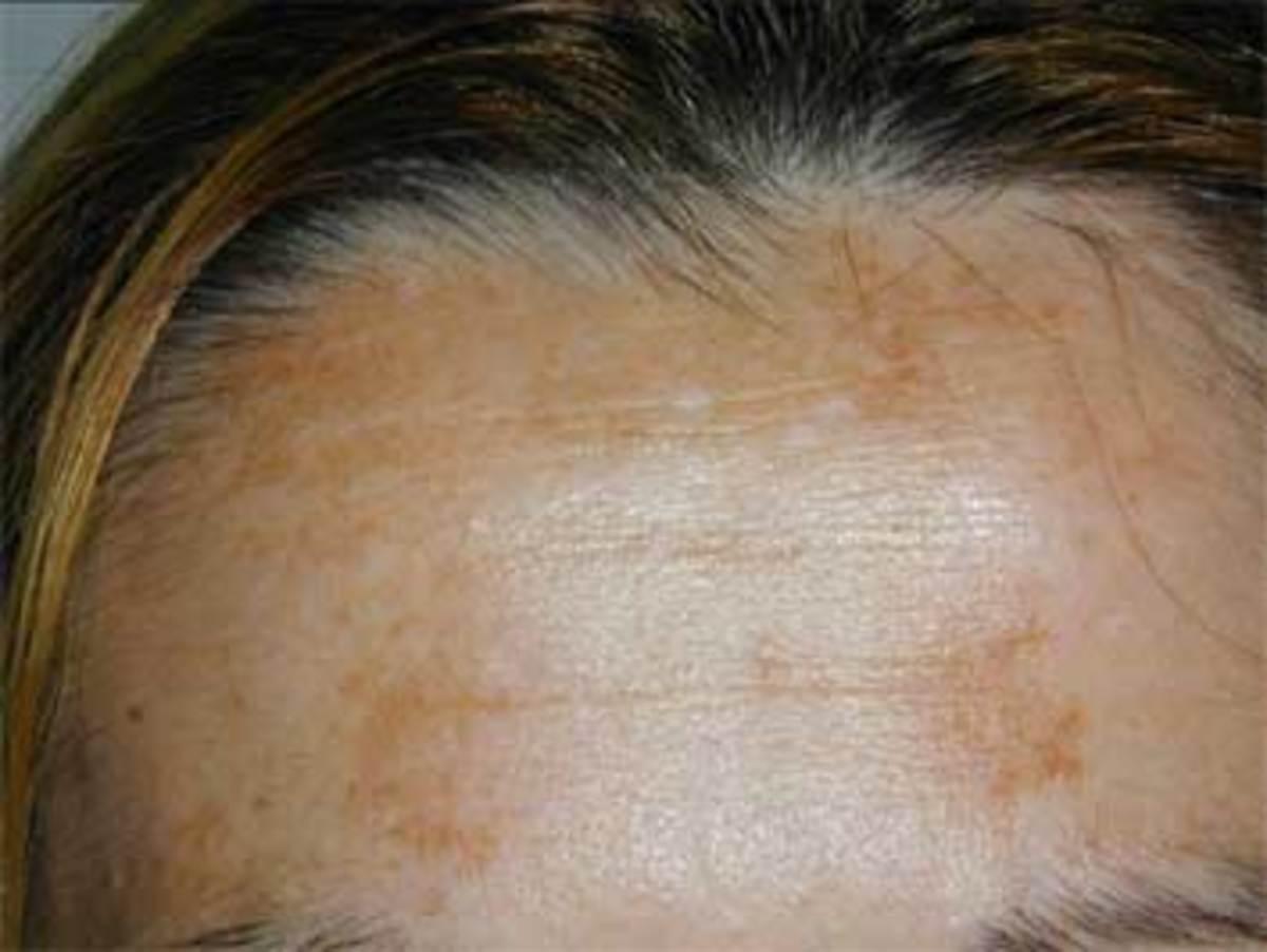 Dark Pigmentation On Face