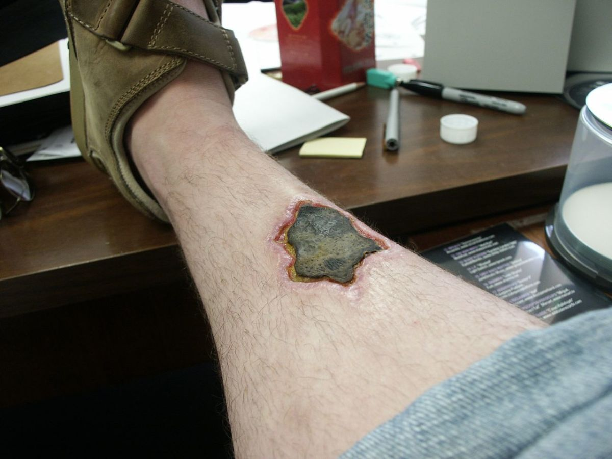 A recluse spider bite after two months. The flesh in the area of the bite is necrotized and was removed a month later.