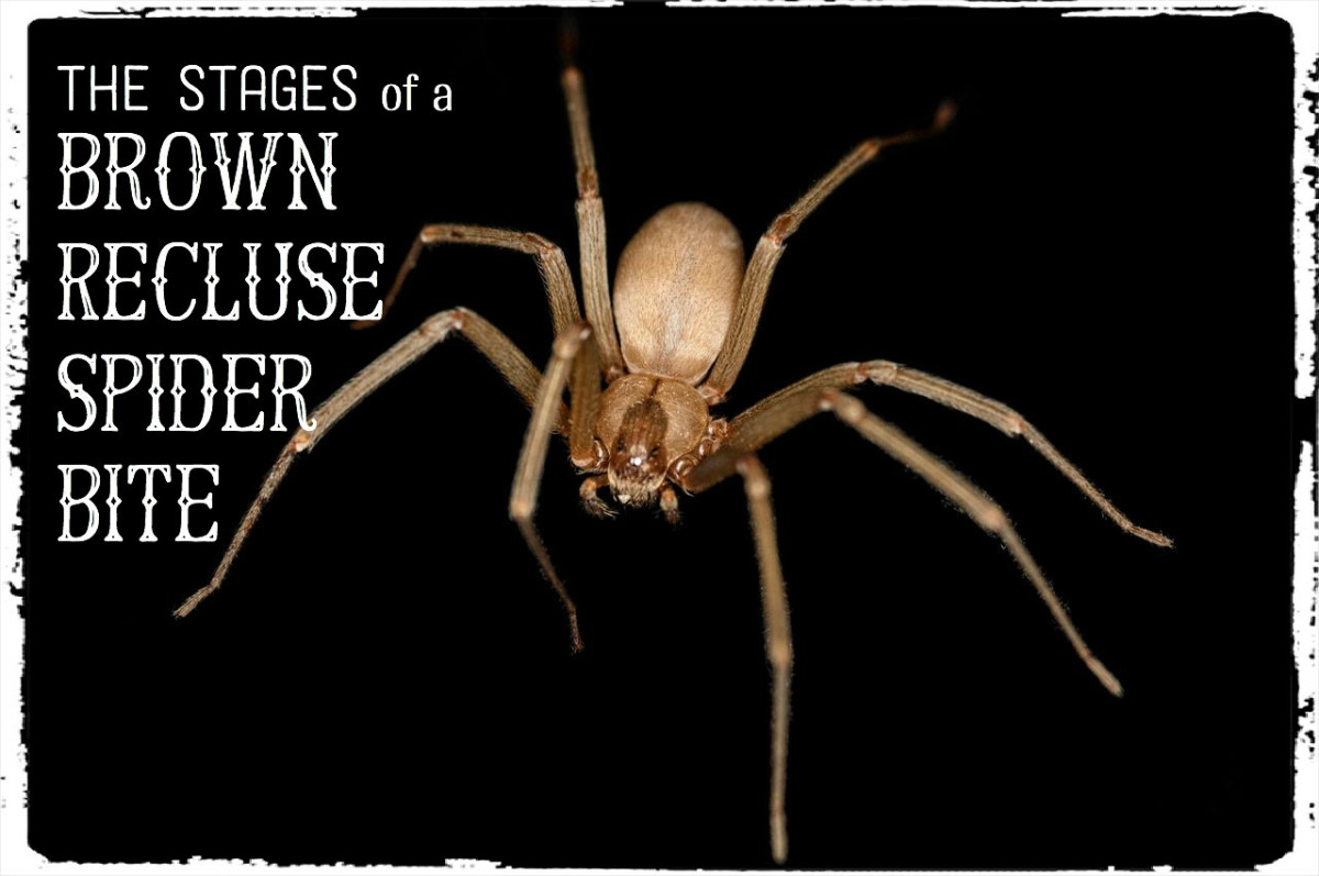 Brown Recluse Bite: Pictures, Stages, Symptoms & Treatment