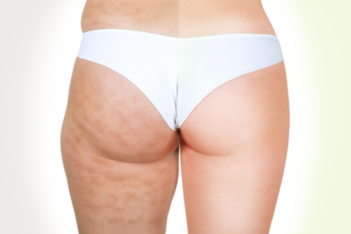 12-easy-ways-to-get-rid-of-cellulite-from-thighs-buttocks-hips-and-lower-stomach