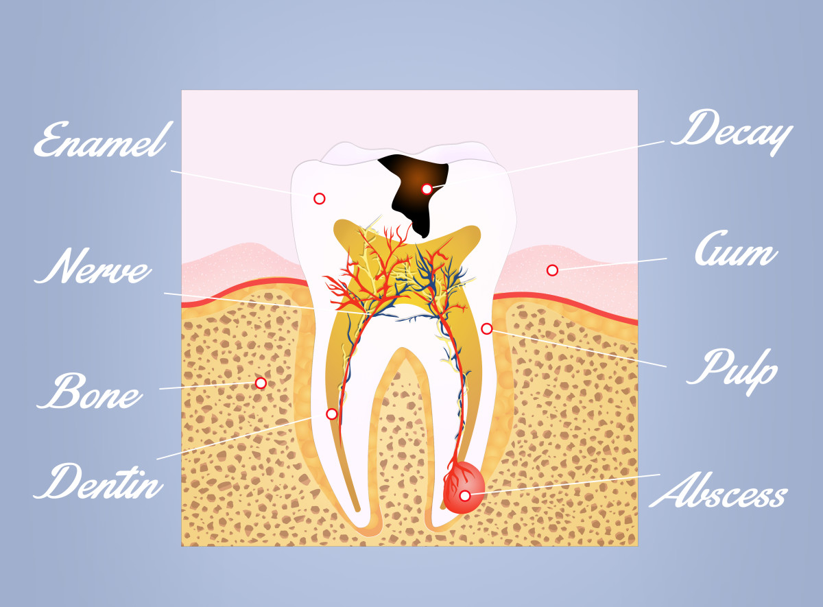 How to Get Rid of an Abscess Tooth Pus and Pain at Home? | HubPages