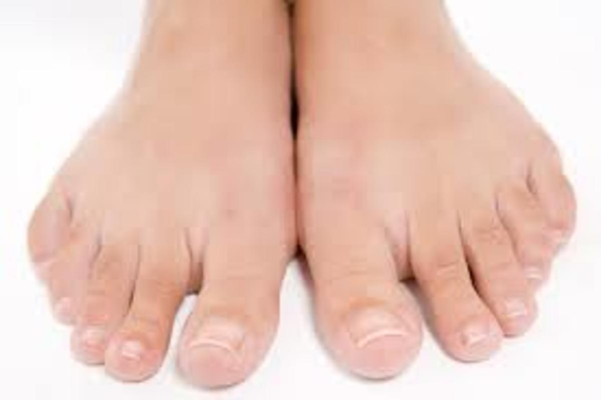 What are some of the problems associated with poor circulation in the foot?