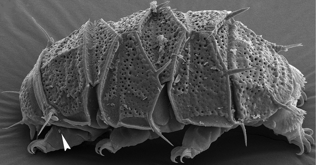 A scanning electron micrograph of a female armored tardigrade named Echiniscus succineus